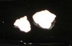 2007_0525歯石0002.JPG
